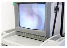 テレビ内視鏡